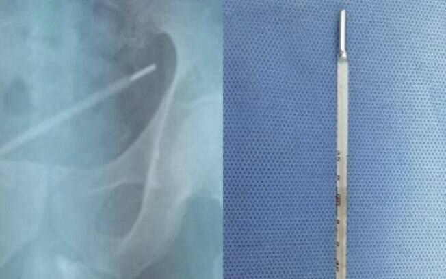 Fotos do raio-x e do objeto retirado da bexiga do rapaz foram divulgadas em jornal de medicina