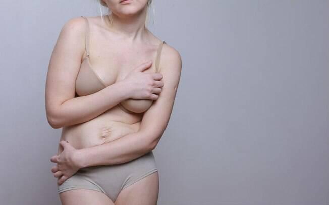 Mudanças físicas decorrentes do parto podem prejudicar a autoestima da mulher, prejudicando intimidade com o parceiro