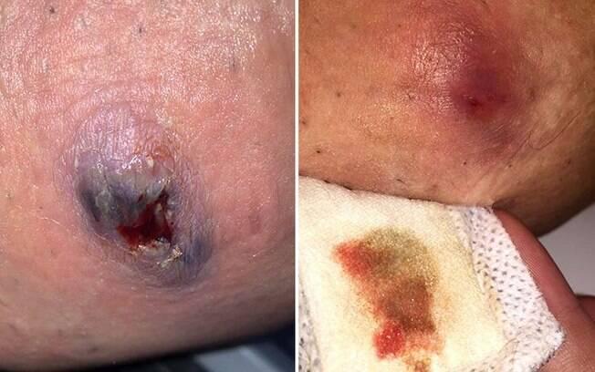 As inflamações podem aparecer em diversas regiões, como axilas, virilha, mamas, braço e nádegas