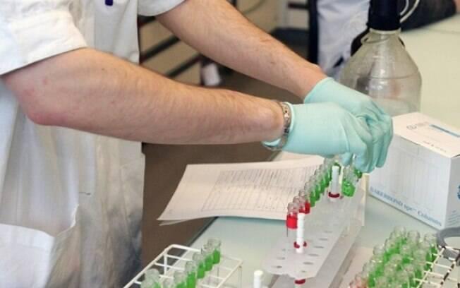 Vírus de Epstein-Barr. Foto: Fifa/Divulgação