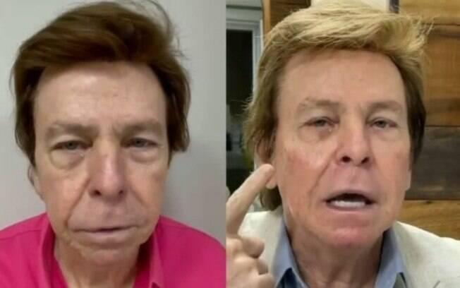 Nelson Rubens. Da esquerda para direita: antes e depois
