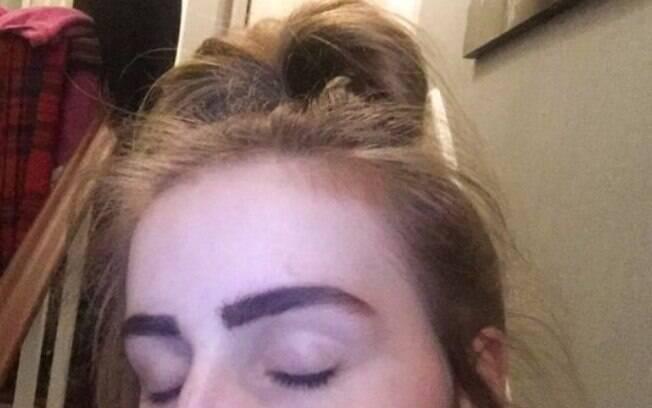 O produto falsificado que Charlotte aplicou no rosto ficou duro e fez com que os pelos das sobrancelhas dela caíssem