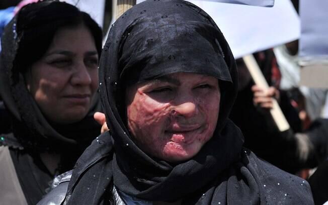 Afeganistão: afegã com rosto marcado por ataque de ácido protesta contra execução pública de suposta adúltera (2012). Foto: AFP