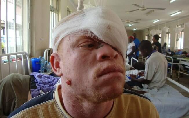 Homem albino é tratado em hospital da Tanzânia (arquivo). Foto: Tanzania Albinism Society