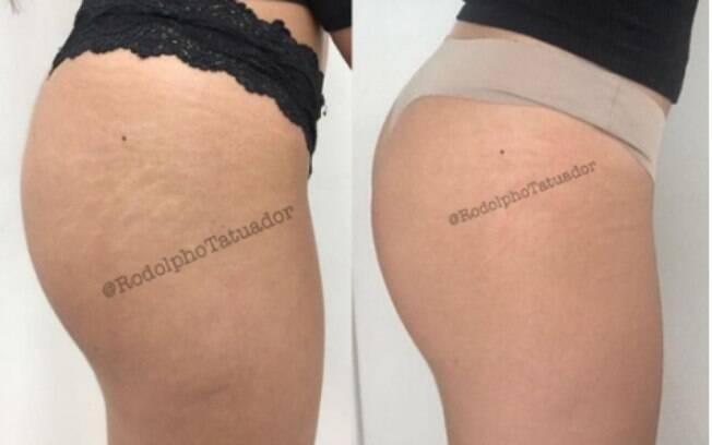 Rodolpho mostra o antes e depois de uma cliente, usando a técnica de tatuagem sobre as estrias. Este é o resultado após 10 dias