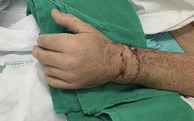 O procedimento só pôde ser realizado porque o homem colocou o membro amputado dentro de um saco de gelo