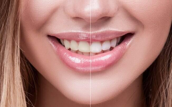 Quando falamos de clareamento dental, há muitas dúvidas que rondam o assunto; por isso, esclarecemos oito questões