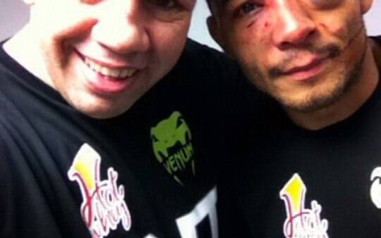 José Aldo fica com olho inchado depois de luta. Veja outros 'desfigurados' - Lutas - iG