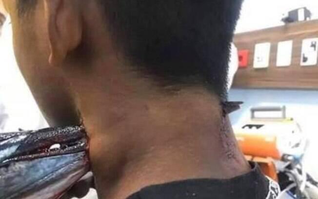 peixe cravado no pescoço de menino