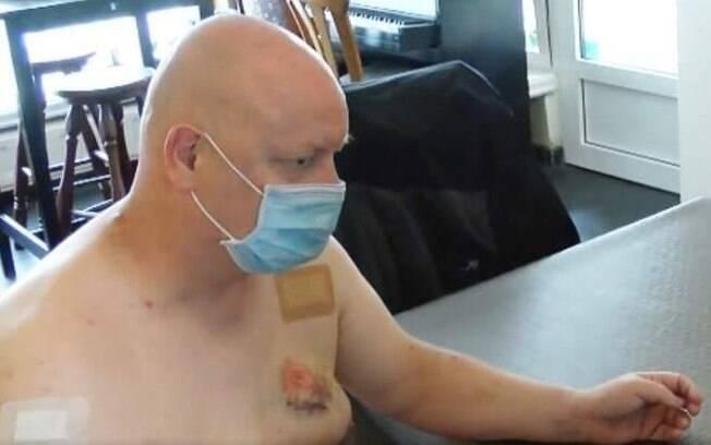 Homem foi mordido em ônibus após corrigir passageiro sobre o uso correto da máscara.