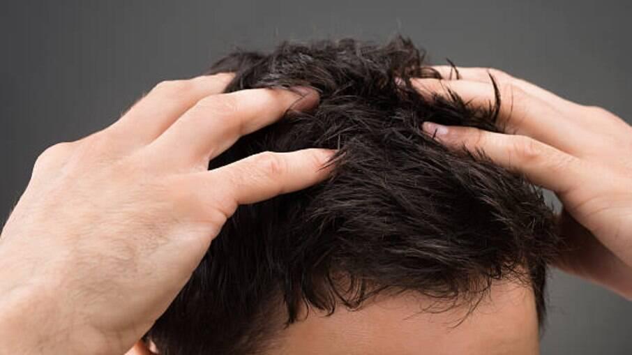 Os tratamentos capilares são procurados principalmente pelos homens que sofrem com a queda de cabelo