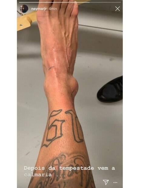 Neymar postou foto da sua lesão no tornozelo