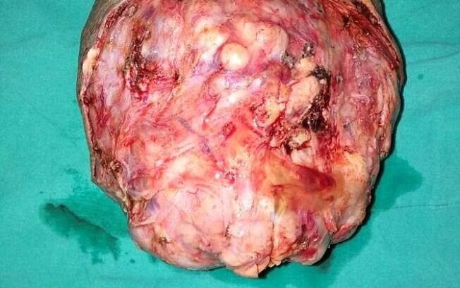 Para retirar a massa de 1,4 kg do pescoço de Somai, médicos levaram três horas e meia