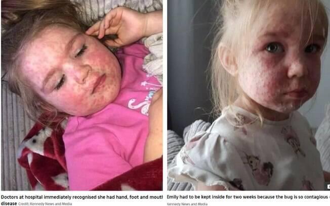 As fotos foram compartilhadas pela mãe da menina, de quatro anos, após ela ficar cheia de manchas e bolhas na pele