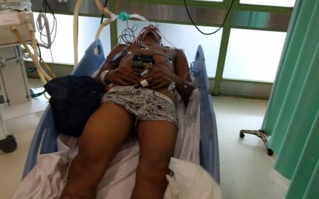Criminoso estaria trocando tiros com policiais do Bope quando foi ferido; atendimento teria sido feito por populares