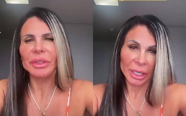 Gretchen faz manutenção da sua harmonização facial
