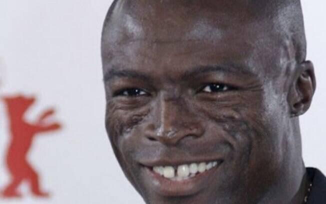 Seal também fugiu do sorriso hollywoodiano e manteve os dentes naturais e afastados na frente