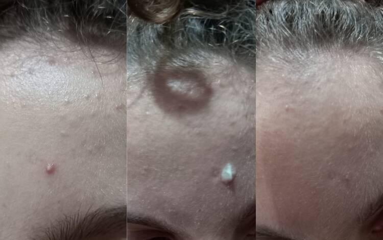Gel secativo aplicado em espinha pequena; a foto da direita foi tirada dois dias depois da aplicação do gel. Foto: Acervo pessoal/Hinode