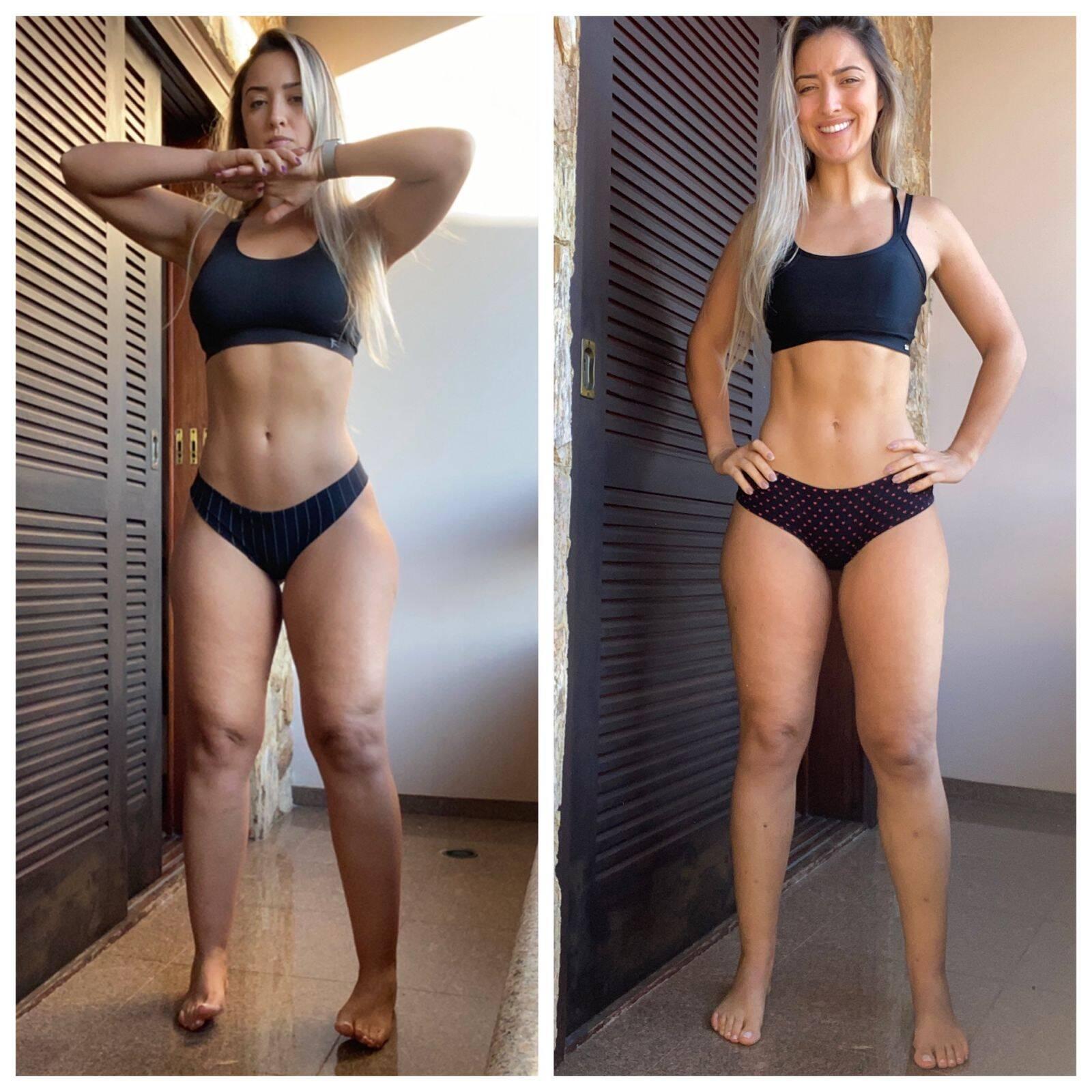 Gabriela Martinez antes e depois da cirurgia de lipoaspiração e de iniciar tratamento. Foto: Acervo pessoal