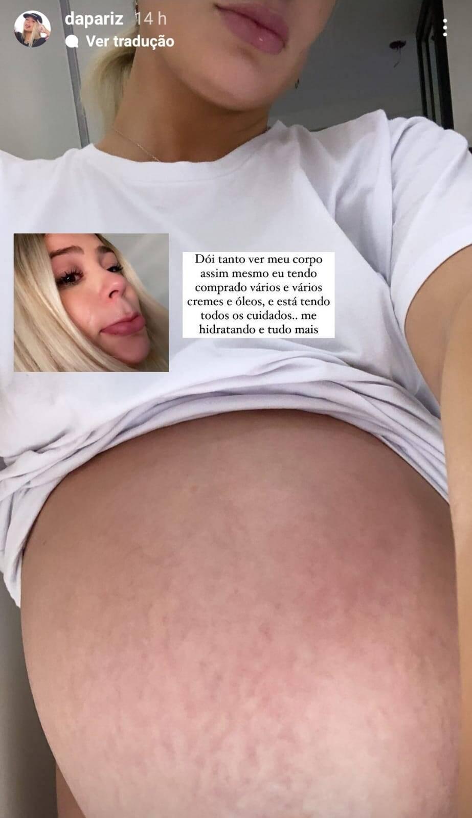 Stories de Dapariz falando sobre mudanças do corpo na gravidez. Foto: Reprodução/Instagram