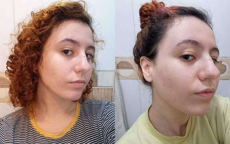 Antes e depois de um mês de uso. Foquei na região da lateral do rosto. O produto amenizou de forma suave as lesões e manchas de acne. Foto: Acervo pessoal/Hinode
