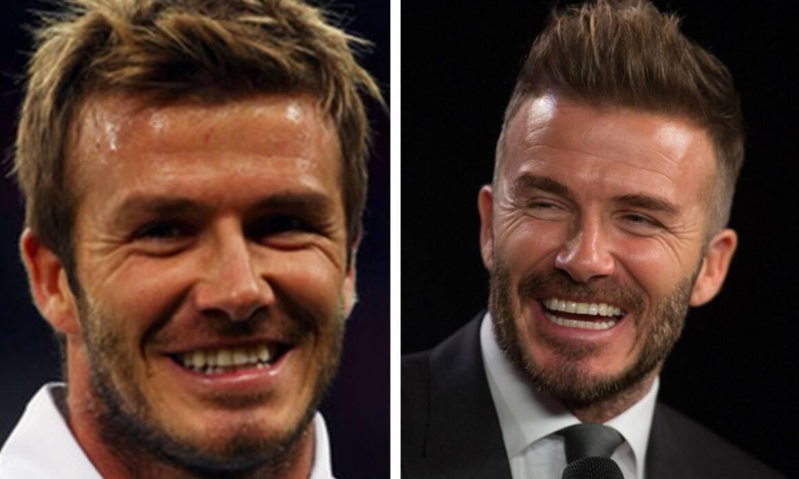 9 - Beckham. Foto: Reprodução
