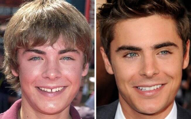 Quando adolescente Zac Efron tinha os dentes separados. O ator também clareou o sorriso depois da fama.