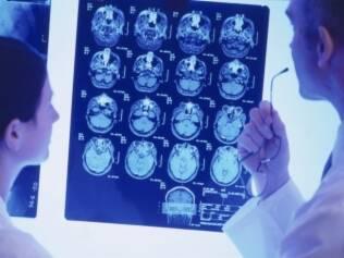 Ressonância magnética é um dos exames que deve ser feito para investigar a doença, mas não o único