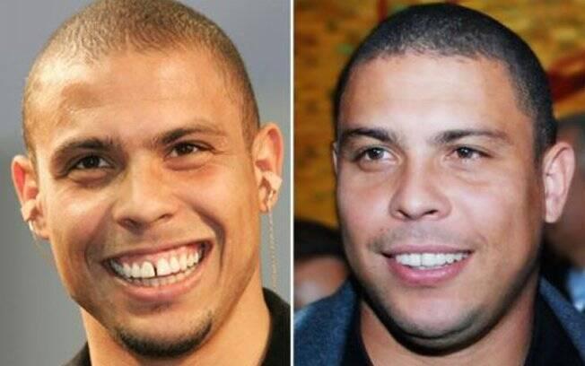 Os dentes separados eram marca registrada do jogador, que mudou o sorriso em outubro de 2008