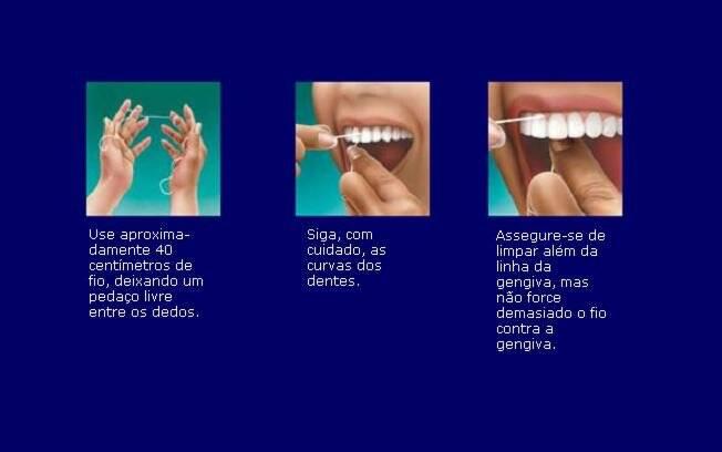 553c72183 Pequenos detalhes na hora de passar o fio dental podem fazer muita  diferença na limpeza de