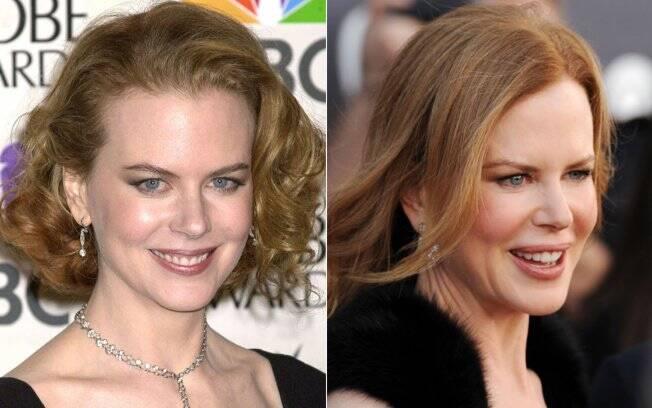 Nicole Kidman em 2001 e em 2011: exagerando no Botox?