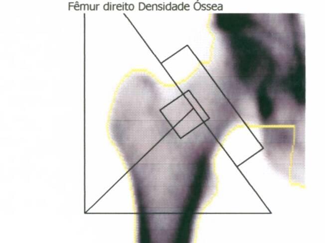 Para que serve o exame densitometria ossea