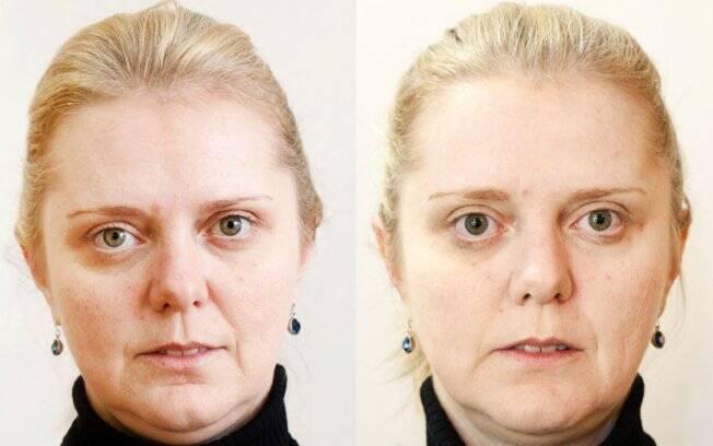 Antes e Depois: pele mais claras e com as linhas mais suaves