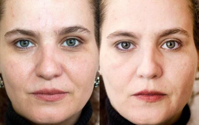 Antes e Depois: pele mais uniforme e sem marcas