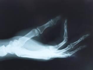 Doença é uma etapa anterior da osteoporose, ainda mais grave