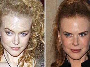 Nicole Kidman antes e depois do Botox