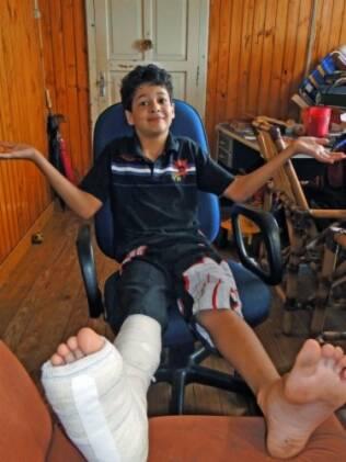 Dannyrooh com o pé quebrado: escola anterior se omitiu