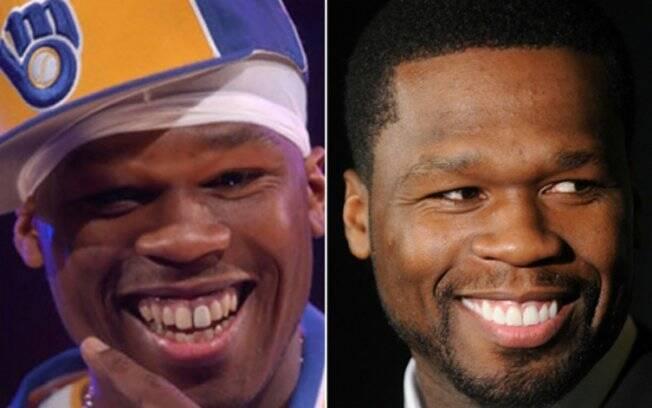 O rapper 50 Cent no começo da carreira, em 2003, e atualmente: sorriso mais uniforme e branco