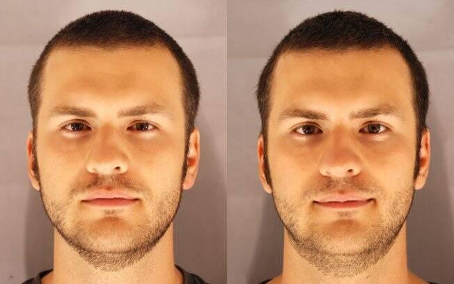 A foto à esquerda mostra o voluntário privado de sono por 31 horas. Na imagem ao lado, ele aparece após dormir por 8 horas