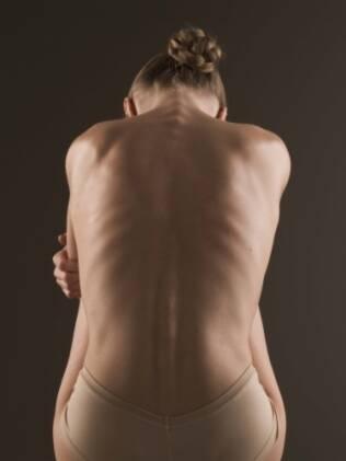 Estudo nacional mostra que 64% das universitárias estão insatisfeitas com o corpo