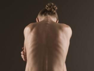 Mulheres com pouca gordura no corpo deixam de menstruar por conta dos baixos níveis de leptina