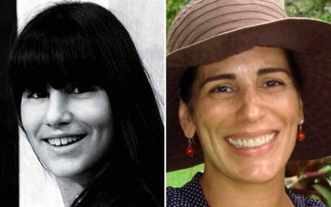 Glória Pires foi uma das primeiras no Brasil a experimentar a cirurgia de redução de gengiva, na década de 1980. Além disso, a atriz juntou e clareou os dentes