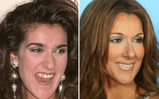 Antes de estourar no showbiz, a cantora Céline Dion foi orientada a dar um tapa no visual, diminuir o canino e clarear os dentes