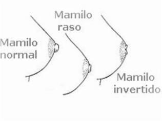 Três tipos de mamilos: o normal, raso (achatado) e invertido (para dentro da mama)