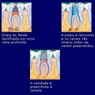Etapas do tratamento de canal