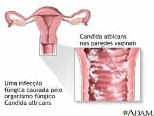 monilia vulva