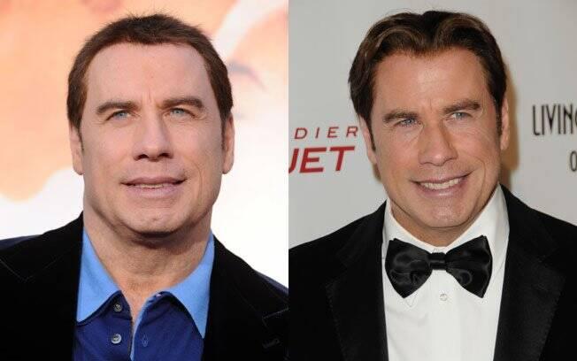 John Travolta em dois momentos: em março de 2010 e durante o Globo de Ouro 2011