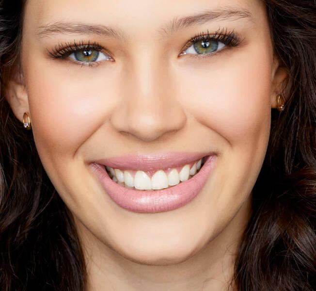 Lentes De Contato Para Os Dentes E Outras Tecnicas Garantem Sorriso
